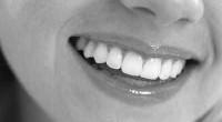 La implantalogía dental es una técnica nueva, consistente en utilizar raíces artificiales fabricadas en titanio que se colocan con un sencillo procedimiento en el hueso mandibular o maxilar. Son exactamente […]